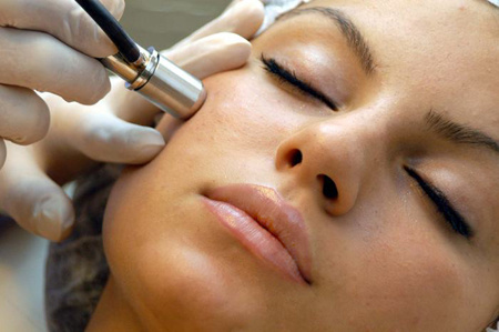 microdermabrasion skin treatment in pittsburgh